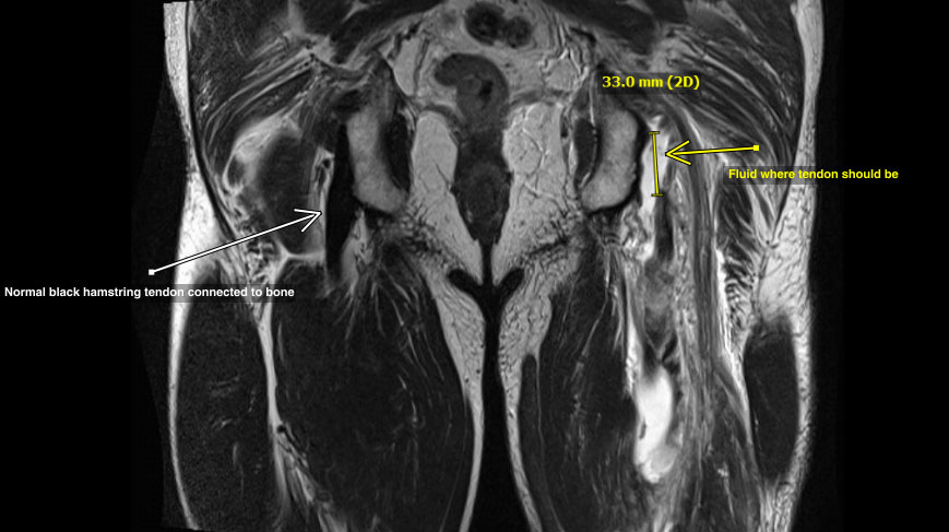 sports-injury-hip-mri